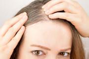 Làm gì để hết tình trạng tóc bạc sớm ở tuổi 17 ?