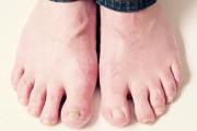 Rách động mạch bàn chân do bị mảnh kính đâm....