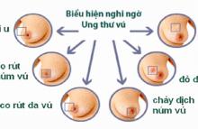 Khối u ở vú, khi nào là ung thư?