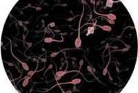 Tinh dịch và tinh trùng