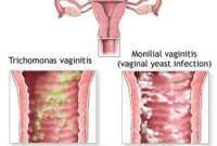 kiến thức sức khỏe, kiến thức về thuốc, sử dụng thuốc, kiến thức phụ khoa, bệnh phụ khoa, bộ phận sinh dục nữ, âm đạo