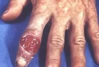 bệnh giang mai, chữa khỏi bệnh, bệnh lây lan qua đường tình dục