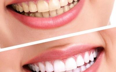 4 tips làm trắng răng tại nhà an toàn và hiệu quả