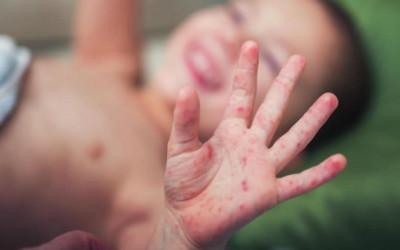 Trẻ mắc tay chân miệng tay vọt, Bộ Y tế yêu cầu khẩn cấp