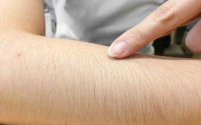 Con gái lông rậm nên cẩn thận với một số căn bệnh rất dễ mắc phải