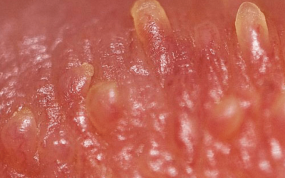 Bao lâu sau hành vi nguy cơ gây lây nhiễm có thể đi xét nghiệm sùi mào gà