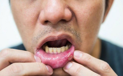 "Bị nhiệt miệng sau quan hệ với ""gái"" có phải là do HIV???"