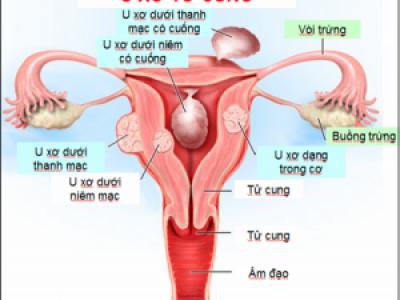u xơ tử cung, nguyên nhân u xơ tử cung, triệu chứng u xơ tử cung, biến chứng u xơ tử cung, điều trị u xơ tử cung, điều trị nội khoa, điều trị ngoại khoa, bóc tách u xơ tử cung, các dạng u xơ tử cung