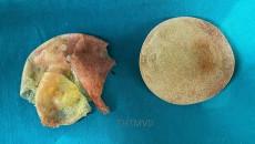 phẫu thuật thẩm mỹ, vỡ túi silicone, nâng ngực, túi nhám to