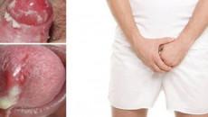 bệnh lậu, sức khỏe nam khoa, viêm niệu đạo, bệnh lây truyền qua đường tình dục