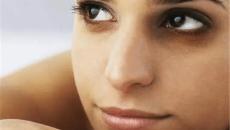 Phụ nữ đừng bỏ qua tình trạng mắt thâm quầng, rất có thể là do 5 vấn đề sức khỏe dưới đây