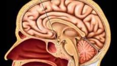 kiến thức mang thai, chuẩn bị sinh, sau sinh,kiến thức sức khỏe, kiến thức về thuốc, kiến thức sống khỏe, bí quyết sống khỏe, hội chứng sheehan, suy tuyến yên