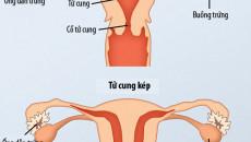 tử cung hai sừng, tử cung hai sừng có con không, tử cung hai sừng khó có con, tử cung đôi, dị dạng tử cung