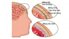 lao màng não, biến chứng lao, lao sơ nhiễm, dấu hiệu lao màng não, điều trị lao màng não