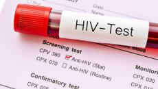 hiv, các xét nghiệm phát hiện sớm hiv, đường lây truyền hiv, phòng tránh lây nhiễm hiv, những đường không thể lây nhiễm hiv, xét nghiệm hiv sớm.