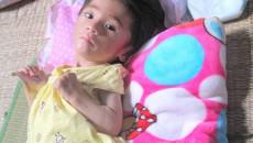 Dấu hiệu bại não ở trẻ, nhận biết bệnh bại não, dấu hiệu lâm sàng bại não, nguyên nhân bại não