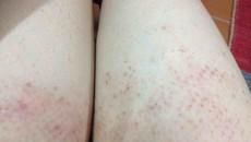 nấm da đùi, triệu chứng của nấm da đùi, biến chứng của nấm da đùi, điều trị nấm da đùi, điều trị nấm da đùi bằng nhóm thuốc azole, điều trị nấm da đùi bằng nhóm thuốc allylamine, điều trị nấm da đùi bằng thuốc bôi, phòng bện nấm da đùi, đảm bảo chế độ vệ sinh, lối sống tình dục an toàn, tích cực điều trị bệnh