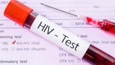 Xét nghiệm ELISA trong chẩn đoán HIV