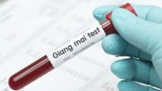 xét nghiệm, giang mai, kết quả, rpr dương tính, tpha, điều trị, cuasotinhyeu