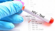 qhtd không an toàn, xét nghiệm, hiv, âm tính, lao hạch, kiểm tra, cd4, theo dõi, chắc chắn, cuasotinhyeu