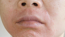gel trị mụn, bong tróc, rát, tác dụng phụ, mụn trứng cá, kích ứng, kem dưỡng âm, sữa rửa mặt, cuasotinhyeu