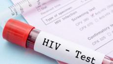 xét nghiệm HIV, test nhanh, thời kỳ cửa sổ, kháng thể, hội chứng suy giảm miễn dịch, virus HIV, tỷ lệ chính xác, cuasotinhyeu