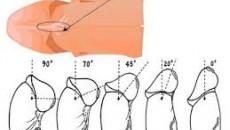 sinh lý, nam khoa, dương vật, ngắn dây hãm bao quy đầu, dài hẹp bao quy đầu