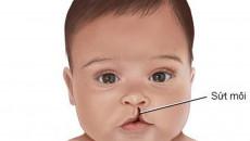 sứt môi, phẫu thuật, mức độ sứt môi, thể trạng, cân nặng, 3 tháng, 6 tháng, cuasotinhyeu