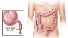 sau mổ ruột thừa nên ăn gì, sau mổ ruột thừa nên kiêng gì, mổ nội soi ruột thừa