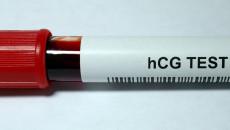 Thời điểm xét nghiệm hCG có kết quả chính xác là gì ?