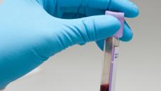 Trong máu của người bình thường có chứa virus HIV hay không ?
