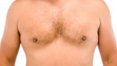 Nam giới nổi cục 2 bên vú khi mới 16 tuổi liệu có sao không ?