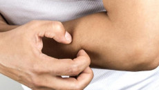Tình trạng ngứa như kim đâm mỗi khi ra mồ hôi là do đâu gây ra ?