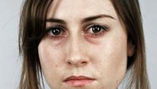 Hay ngáp ngủ, da mặt xanh xao là dấu hiệu của vấn đề sức khỏe nào ?