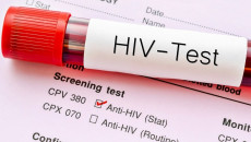 Xét nghiệm ELisa HIV sau 3 tháng là âm tính thì đã an toàn ay chưa ?