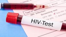 Xét nghiệm HIV sau sinh 2 tháng là âm tính liệu đã yên tâm được chưa ?
