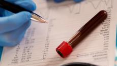 Có cần nhịn ăn trước khi xét nghiệm HIV không ?