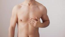 Nam 17 tuổi xuất hiện u cục ở vú, dấu hiệu của ....