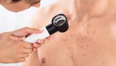 Ngực vẫn nổi mụn đỏ dù kết quả xét nghiệm HIV là âm tính...