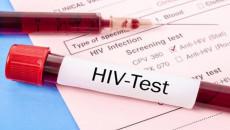 """Như thế nào mới được coi là """"an toàn"""" với HIV và viêm gan C?"""