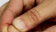 """Vết thương hở không chạm vào """"máu khô"""" thì có nhiễm HIV không?"""