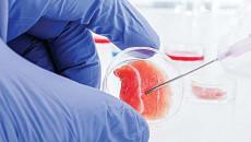 Liệu pháp tế bào gốc trong điều trị bệnh hen phế quản!
