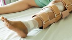 Gãy xương cẳng chân bao lâu mới được tháo khung cố định ngoài?