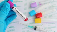 Xét nghiệm Thalassemia HbE cao là gì?