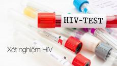 Xét nghiệm PCR HIV sau 20 ngày là âm tính liệu đã đủ yên tâm???