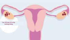 Lạc nội mạc buồng trứng có thể mang thai tự nhiên được không?