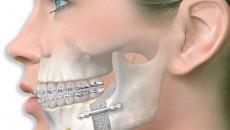 Nẹp vít titan vùng mặt có cần phải tháo ra hay không?