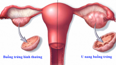 Hai buồng trứng đều có cấu trúc trống âm khi đi siêu âm