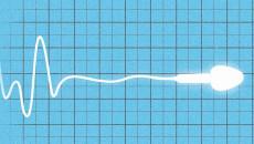Nên làm gì để sớm có con khi bị tắc ống dẫn tinh?