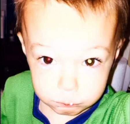 Bức ảnh với một bên mắt màu trắng khiến người mẹ linh cảm có điều không tốt ở con trai mình